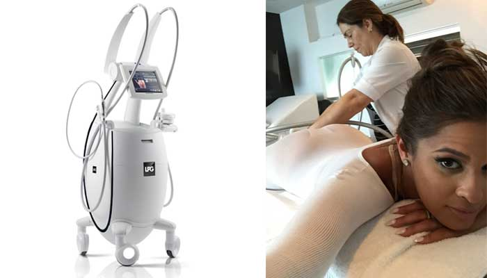 celebrity-endermologie-cellulite-treatments