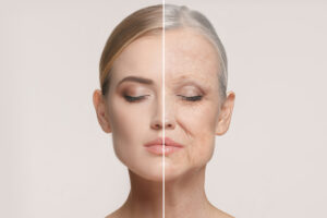 the visible effects of facial aging and how to prevent wrinkles