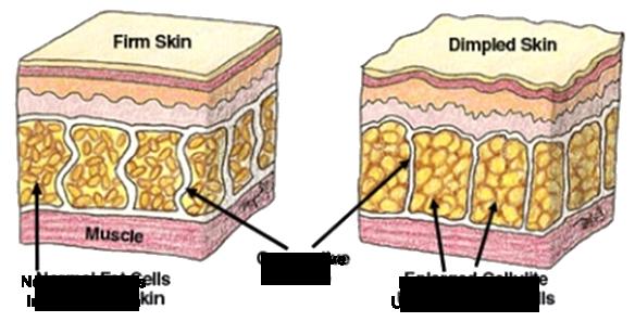 skin_diagram