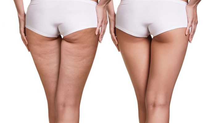 Female buttocks before and after cellulite