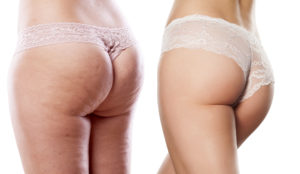 treating cellulite