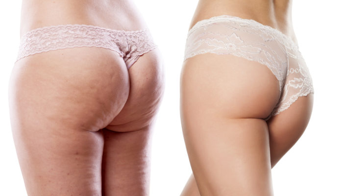 Cellulite Causes, Treatment, and Prevention Explained! - Endo Systems